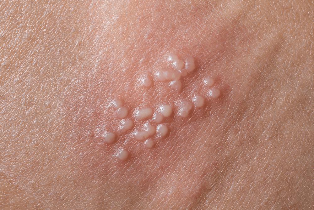 hình ảnh herpes sinh dục qua các giai đoạn