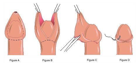 Hình ảnh trước và sau khi cắt bao quy đầu ở nam giới