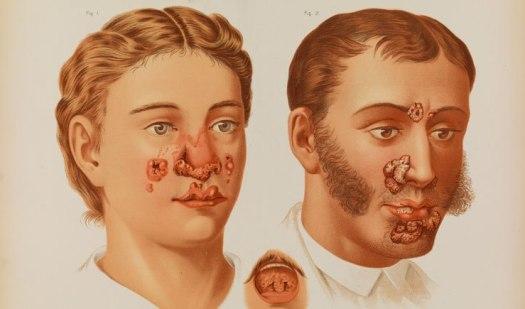 hình ảnh bệnh giang mai ở nam và nữ giới đầy đủ