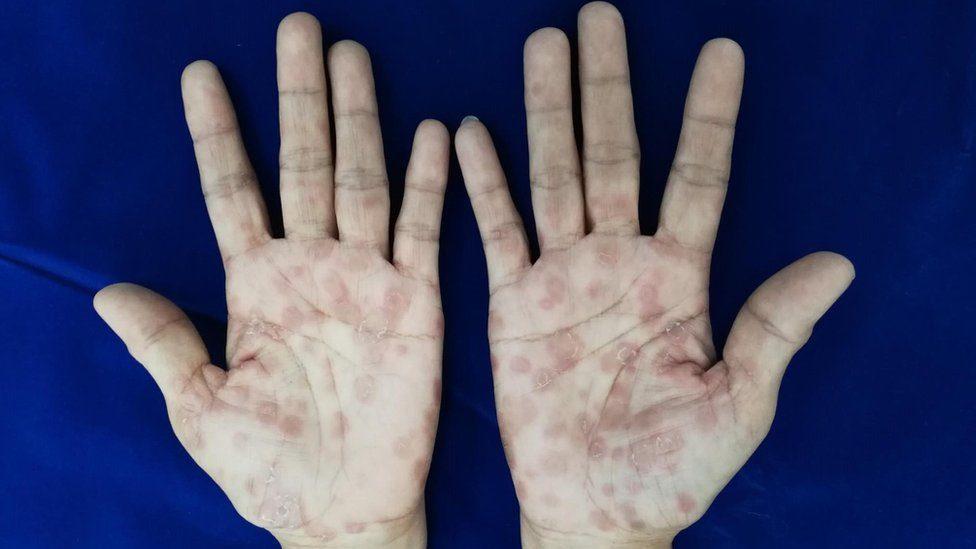 hình ảnh bệnh da liễu ở nam giới