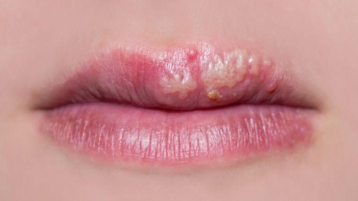 hình ảnh herpes ở miệng chi tiết nhất