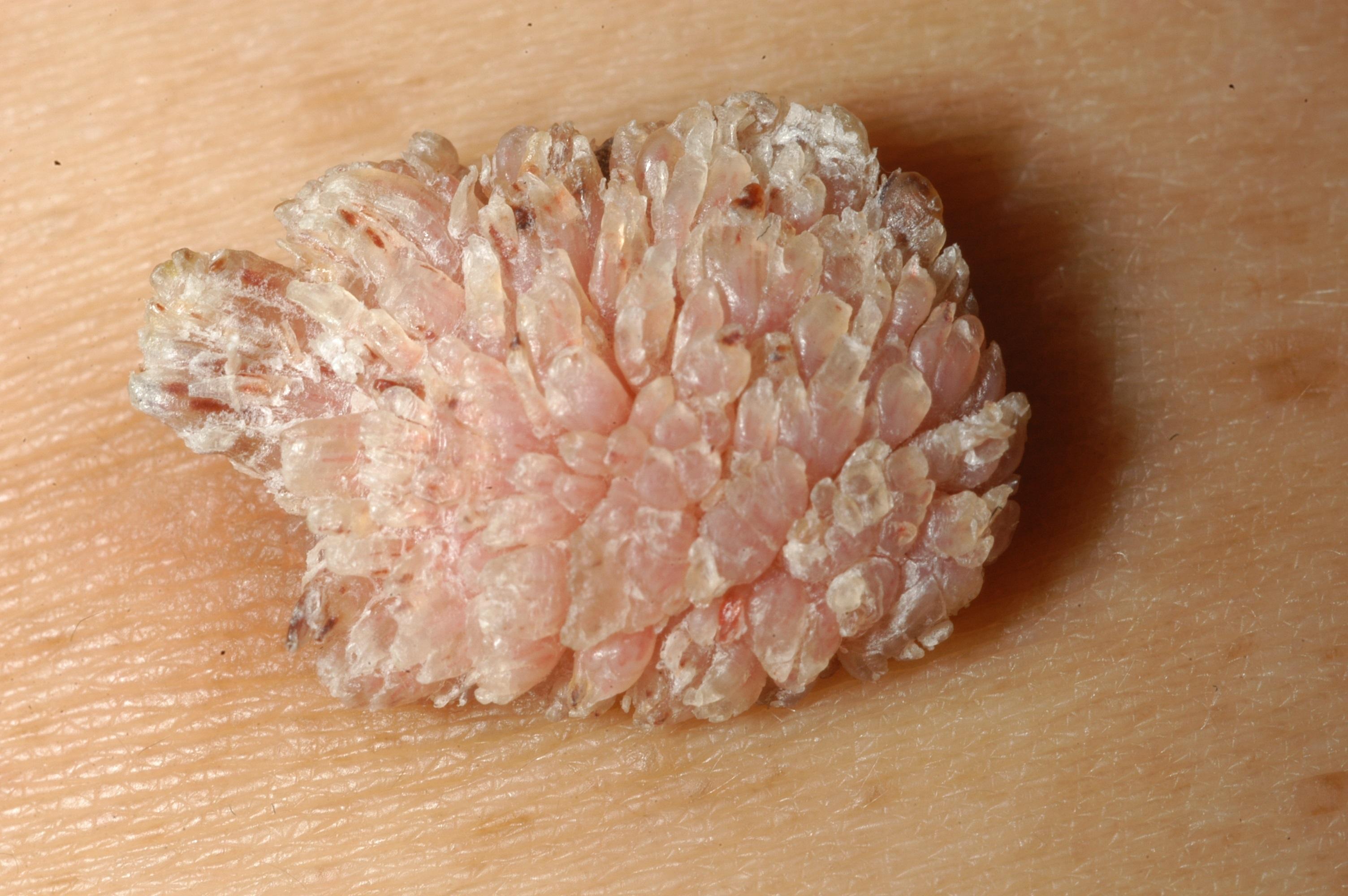 Phân biệt bệnh sùi mào gà và chuỗi hạt ngọc dương vật