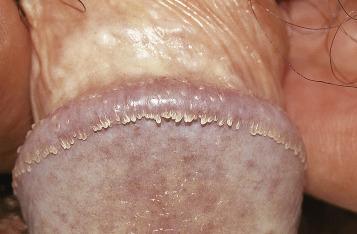Dương vật nổi mụn thịt là bị gì và cách điều trị hiệu quả