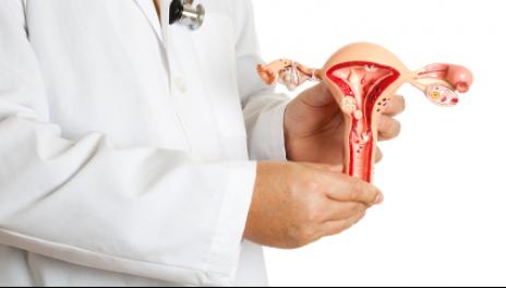 Cách chữa lạc nội mạc tử cung hiệu quả