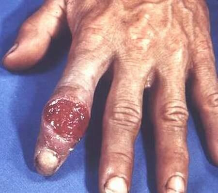 Hình ảnh bệnh giang mai giai đoạn 3