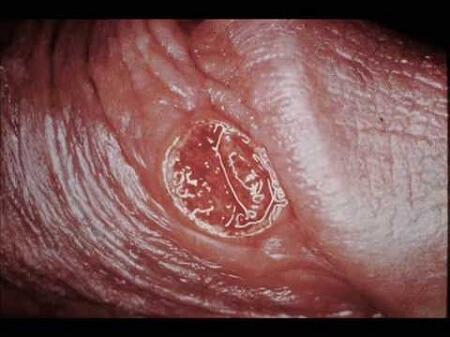 Hình ảnh bệnh giang mai giai đoạn