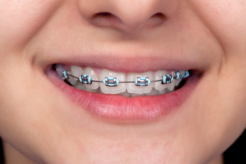 Metal Braces - American Orthodontics Master Series