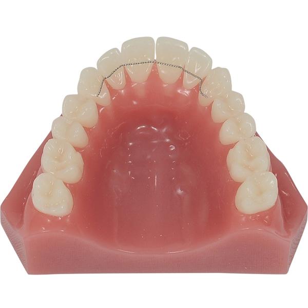 Bock Orthodontics - Retainers