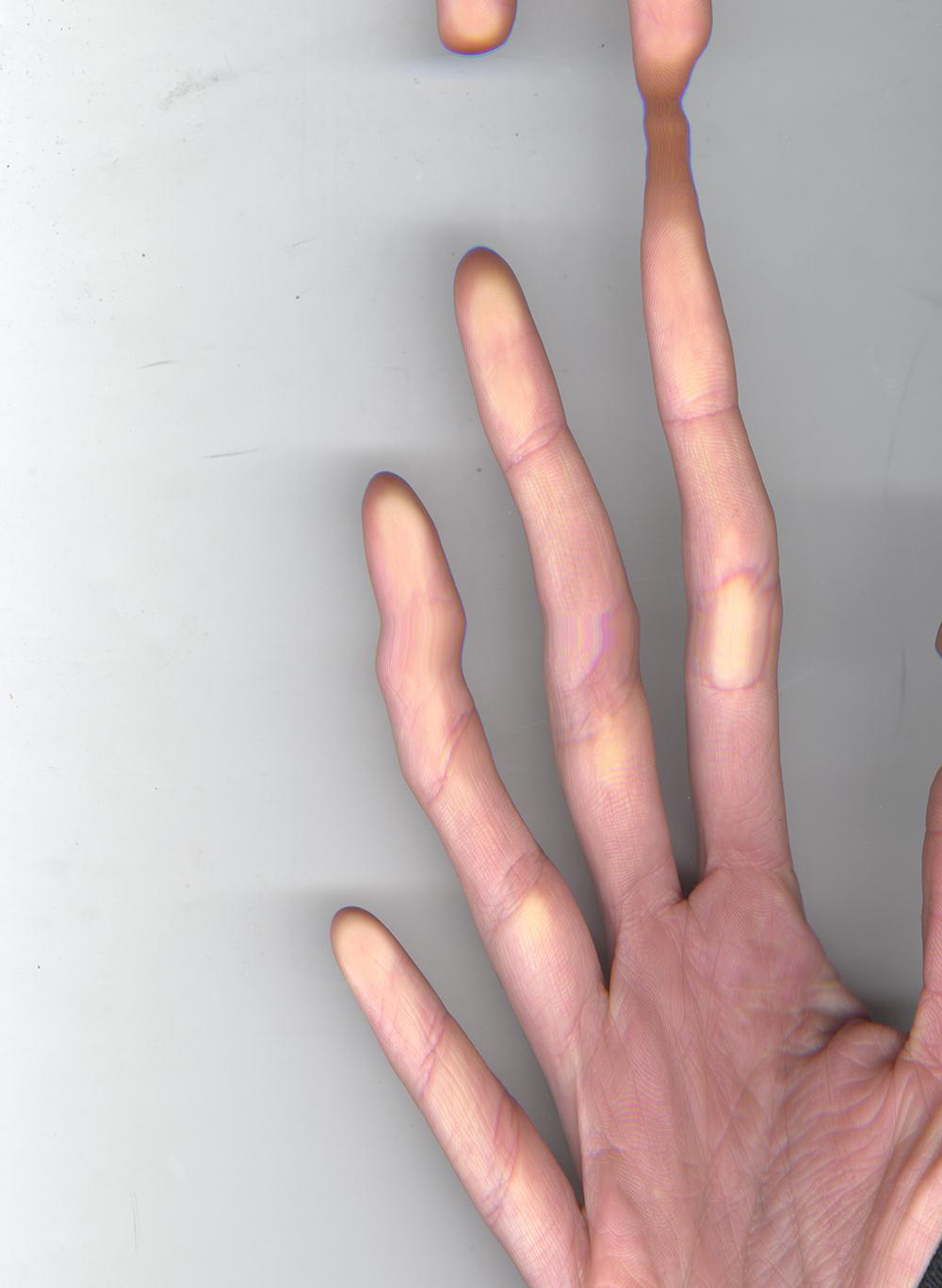 Phil's hand