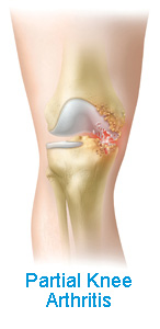 Partial Knee Arthritis