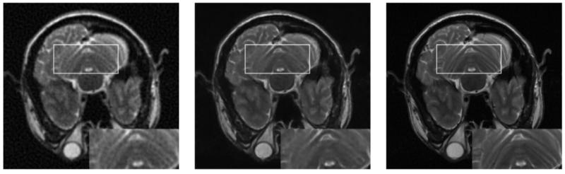 content-based image retrieval as diagnostic aid
