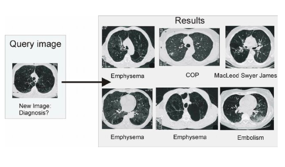 Content-based image retrieval s diagnostic aid.