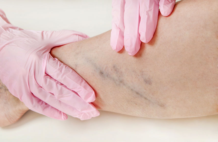 Everything You Need to Know About Venous Disease