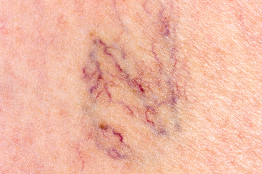 Everything You Should Know about Varicose Veins
