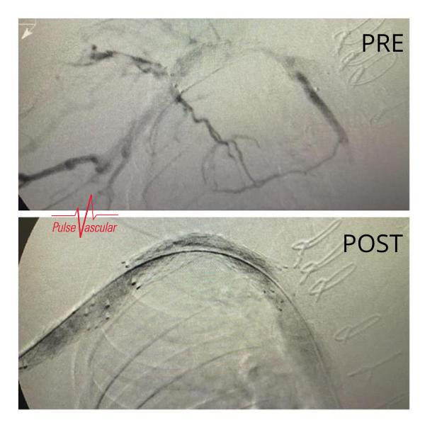 Pulse Vascular End Stage Renal Disease (ESRD) patient.