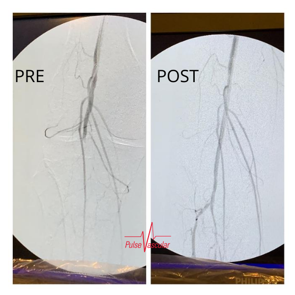 Pulse Vascular patient with Peripheral Arterial Disease.