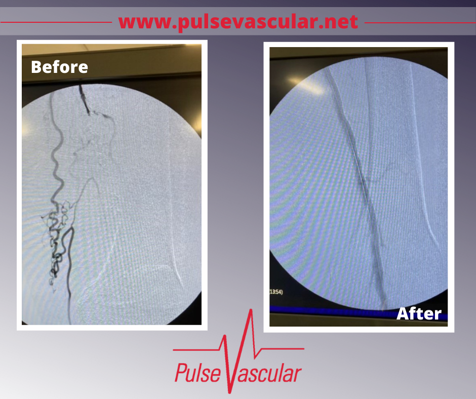 Photos of patient's leg before and after an arteriogram performed by Dr. Scott Hollander at Pulse Vascular.