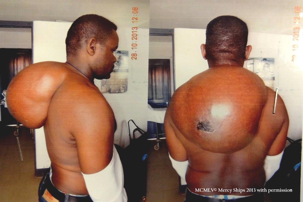 Jean Bosco's tumor on his back