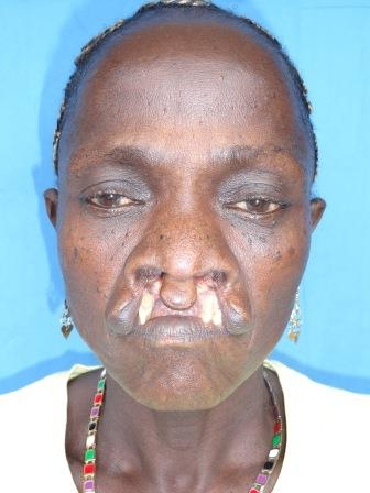 Bilateral Cleft Lip from the front
