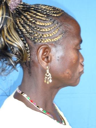 Bilateral Cleft Lip from the side