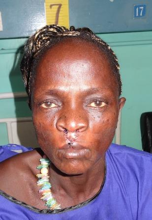 After surgery picture, woman with a healed upper lip.
