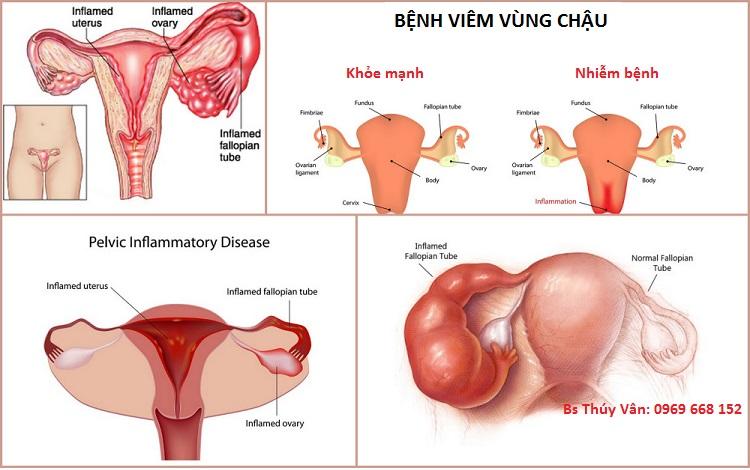 Bệnh viêm vùng chậu (PID)