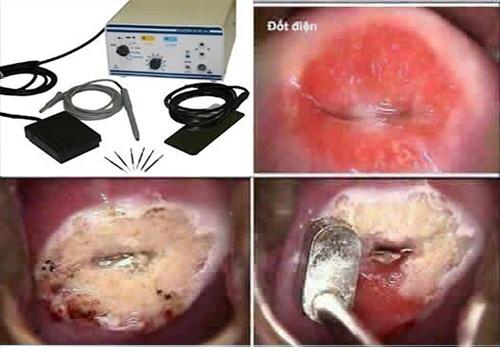 Đốt viêm lộ tuyến cổ tử cung bao nhiêu tiền