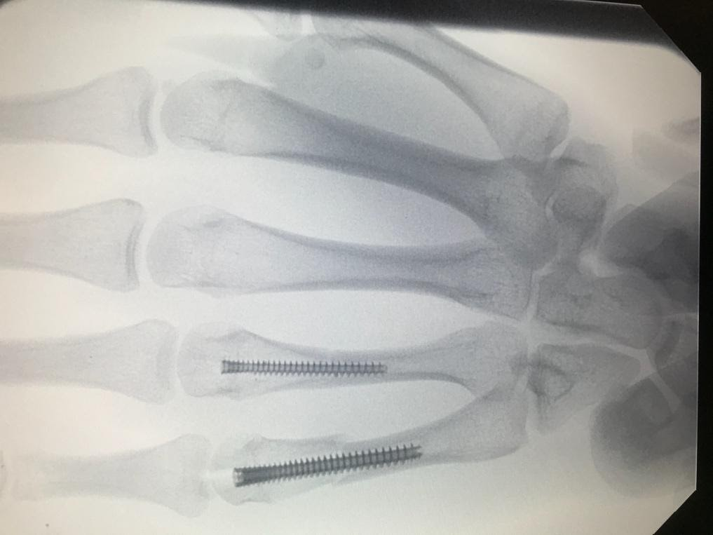 A picture containing indoor, X-ray filmDescription automatically generated