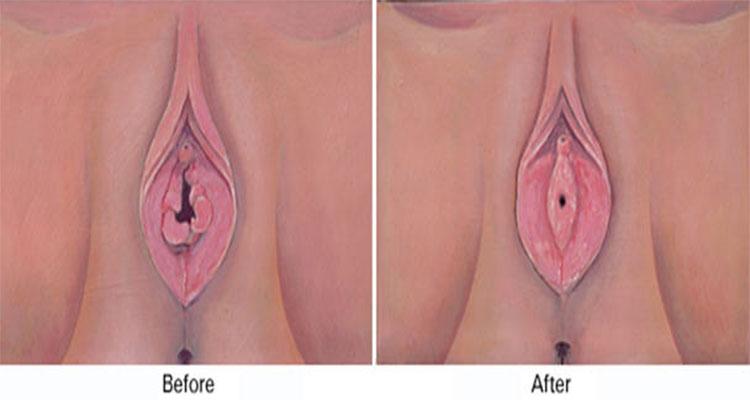 Hình ảnh trước và sau khi vá màng trinh
