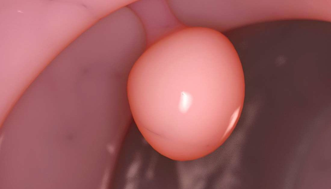 polyp âm đạo có nguy hiểm không