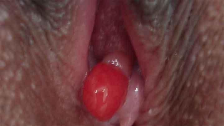 hình ảnh polyp âm đạo ở chị em phụ nữ