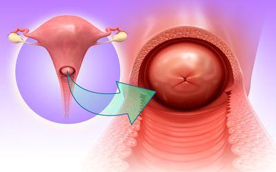 hình ảnh polyp cổ tử cung chi tiết nhất