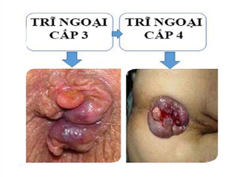hình ảnh bệnh trĩ ngoại và trĩ nội qua các cấp độ 1 2 3