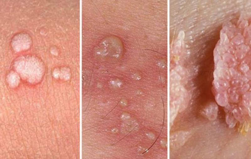 Bệnh sùi mào gà ở miệng Nguyên nhân Triệu chứng và Cách điều trị