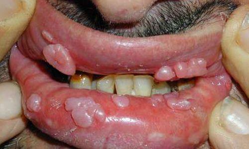 hình ảnh sùi mào gà ở miệng qua từng giai đoạn