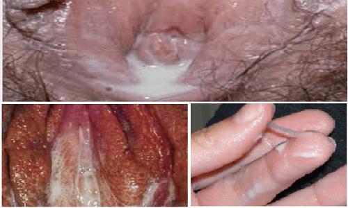 hình ảnh bệnh lậu ở từng giai đoạn