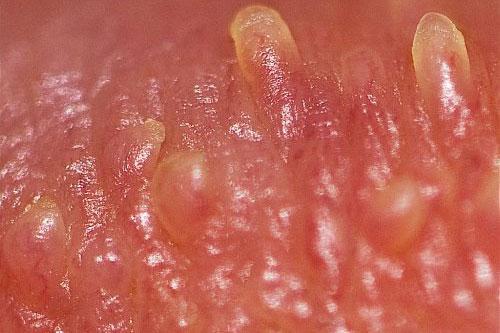 U nhú tiền đình ở lưỡi miệng Triệu Chứng và Cách chữa trị