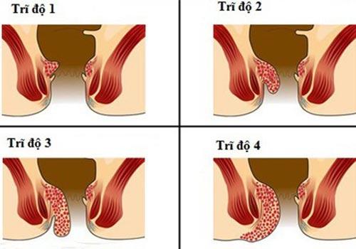 Bệnh trĩ nội độ 2, 3 có cần phẫu thuật không?