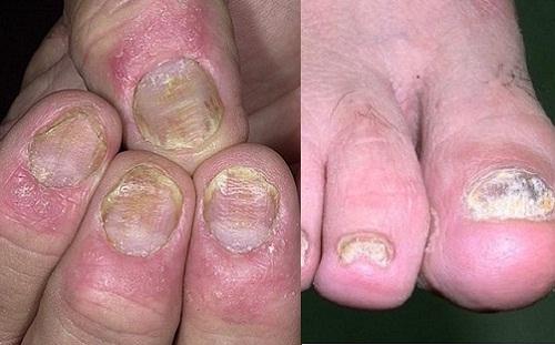Nấm móng chân, Nguyên nhân, Hình ảnh, Cách chữa trị