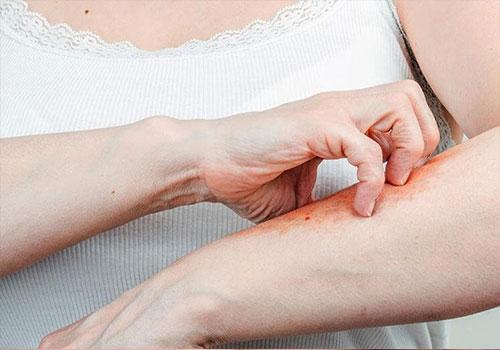 Bệnh ghẻ nước cũng như Nguyên nhân, dấu hiệu và cách điều trị