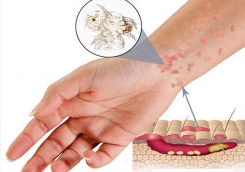 Những bệnh về da nguy hiểm cần chú ý