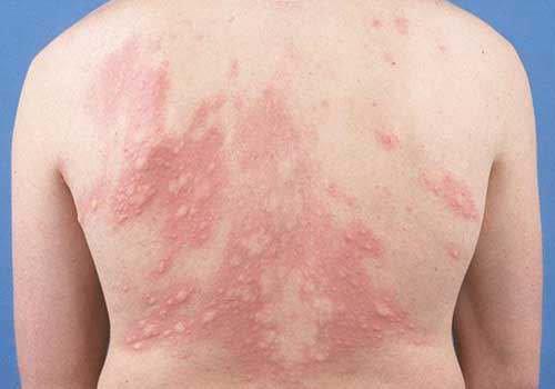 Da nổi từng mảng đỏ là bị gì và nguy hiểm không