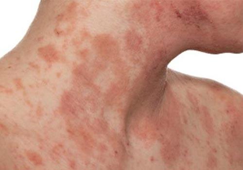 Viêm da tiếp xúc bội nhiễm có nguy hiểm không và Cách chữa trị