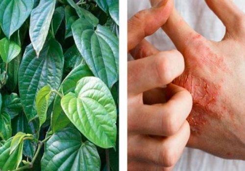 10 cây thuốc chữa dị ứng hiệu quả nhất