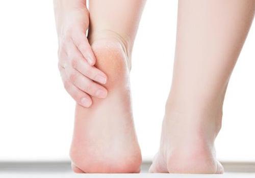 Tại sao gót chân bị khô cứng nứt nẻ