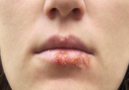 Cách trị hạt bã nhờn trên môi