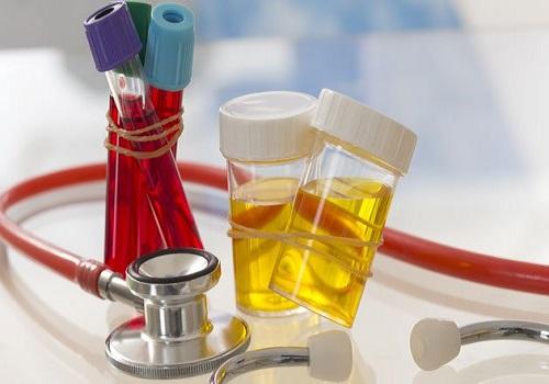 Đi tiểu buốt và ra máu ở phụ nữ là bị gì, Cách chữa trị