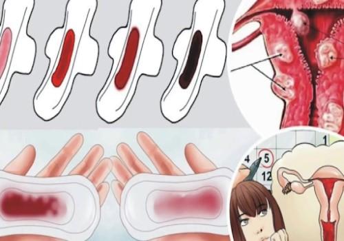 Băng kinh Là gì, Nguyên nhân, Triệu chứng và Thuốc trị