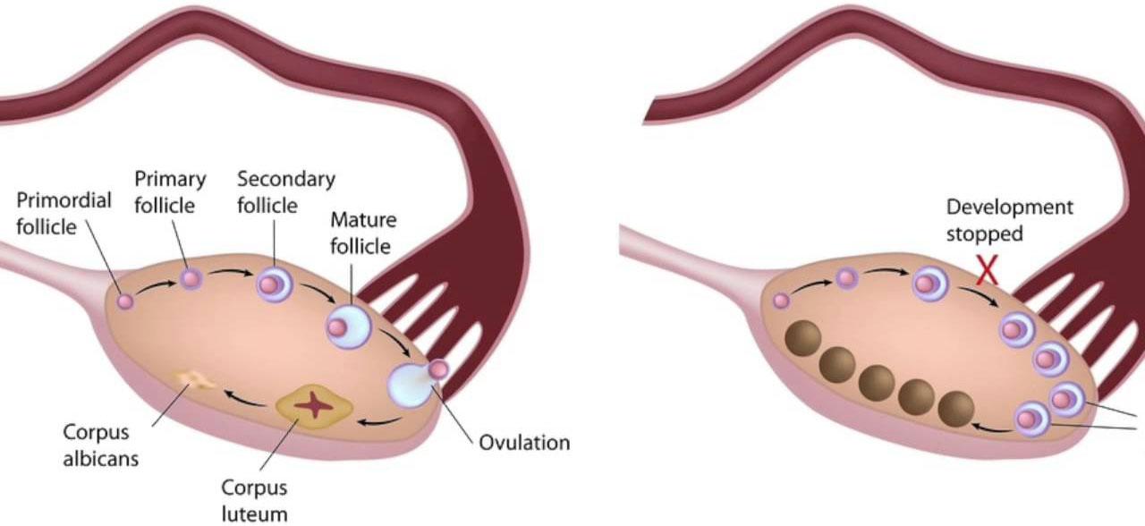 U nang buồng trứng có nguy hiểm không, chữa trị như thế nào hiệu quả