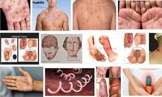 Các dấu hiệu triệu chứng của bệnh giang mai